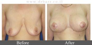 ניתוחים להרמת חזה תמונות לפני ואחרי - 2