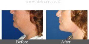 """מתיחת פנים תמונות לפני ואחרי - ד""""ר יעקב בר"""