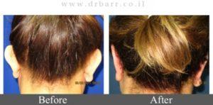 הצמדת אוזניים - תמונות לפני ואחרי