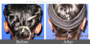 ניתוח הצמדת אוזניים - תמונות לפני ואחרי