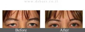 הרמת עפעפיים - תמונות לפני ואחרי