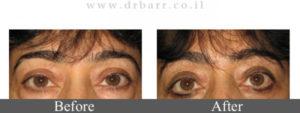 """ניתוח הרמת עפעפיים - תמונות לפני ואחרי - ד""""ר יעקב בר"""