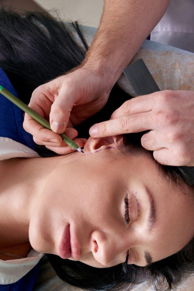 ניתוח הקטנת אוזניים